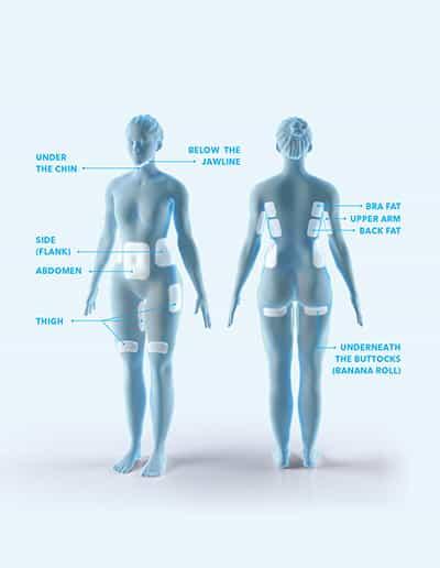 Coolsculpting 9 treatment areas