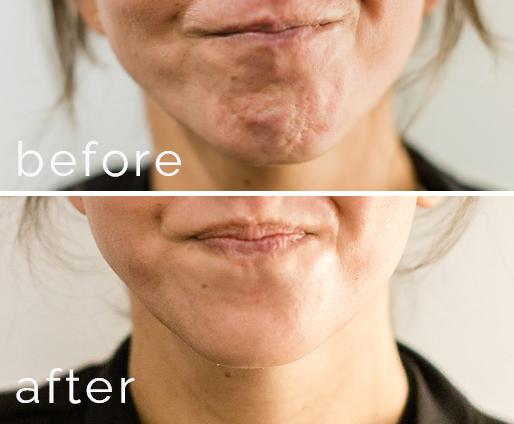 mentalis botox for dimpled chin murfreesboro